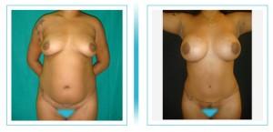 abdomen-lipo-aumento