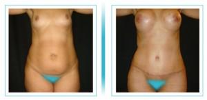 abdomen-lipo-aumento3