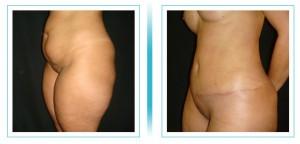 abdomen-lipo-aumento4