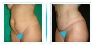 abdomen-y-lipo2