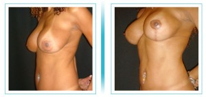 Breast Liftting with Implants